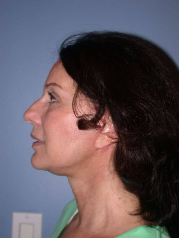 Facelift Gallery - Patient 4756963 - Image 4