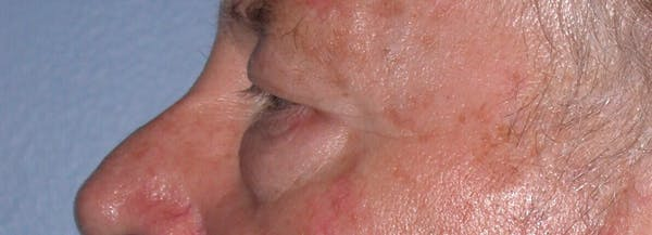 Eyelid Lift Gallery - Patient 4756962 - Image 7