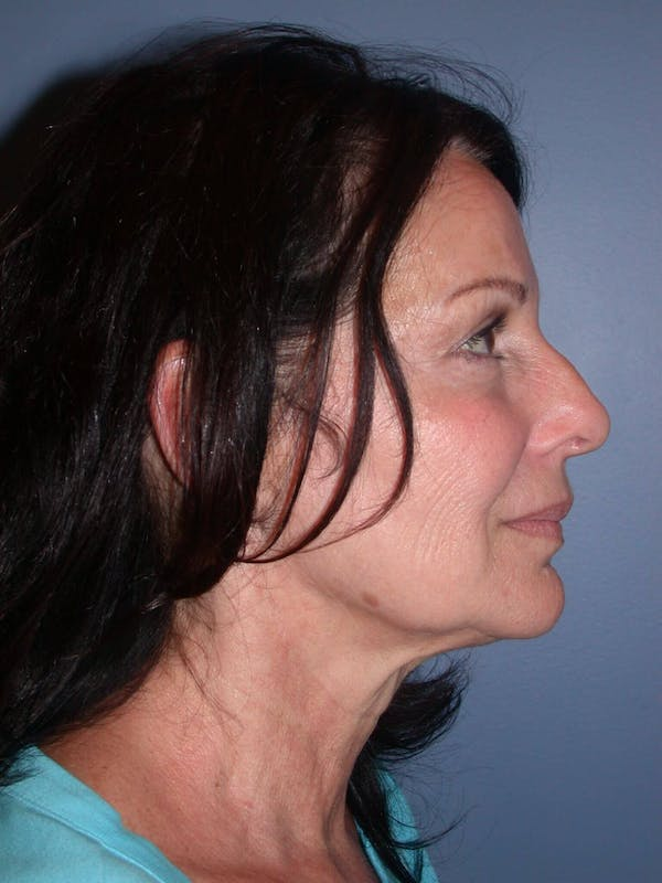 Facelift Gallery - Patient 4756963 - Image 5