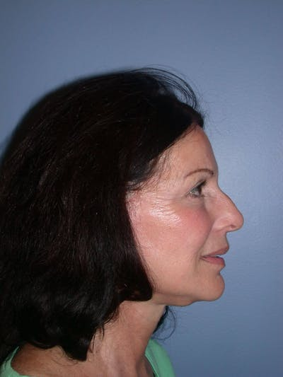Facelift Gallery - Patient 4756963 - Image 6
