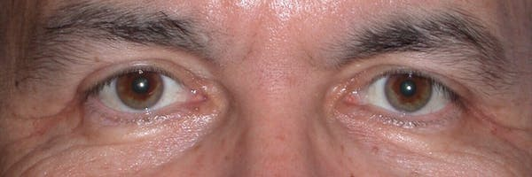 Eyelid Lift Gallery - Patient 4756964 - Image 2