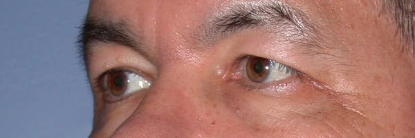 Eyelid Lift Gallery - Patient 4756964 - Image 3