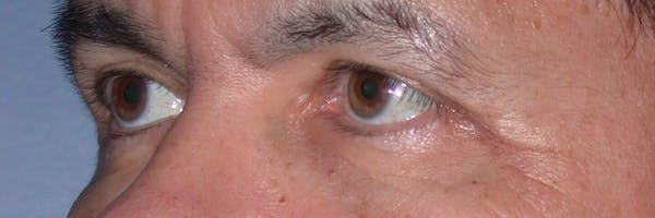 Eyelid Lift Gallery - Patient 4756964 - Image 4