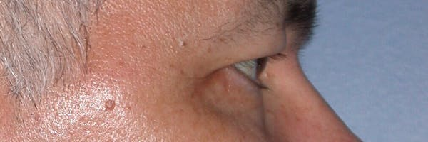 Eyelid Lift Gallery - Patient 4756964 - Image 5