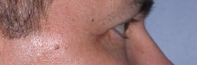 Eyelid Lift Gallery - Patient 4756964 - Image 6