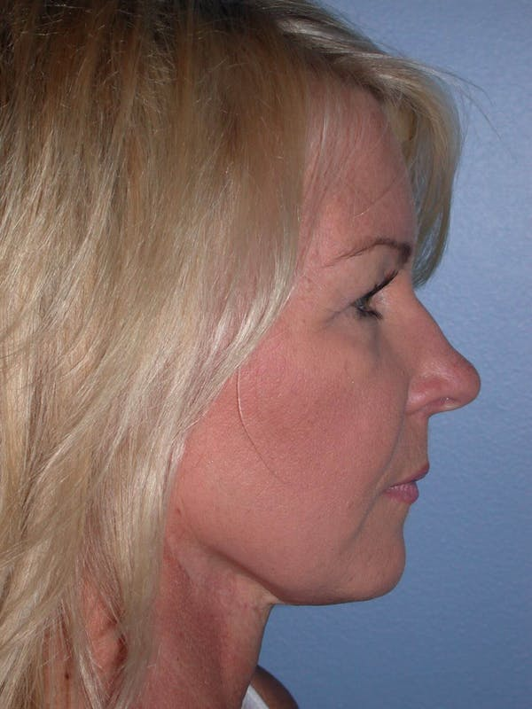 Facelift Gallery - Patient 4756967 - Image 3