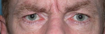 Eyelid Lift Gallery - Patient 4756968 - Image 1