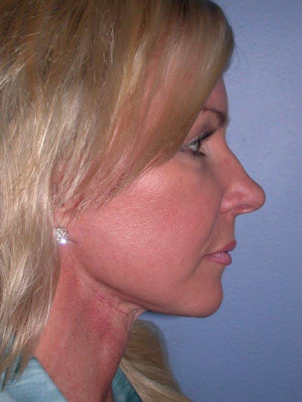 Facelift Gallery - Patient 4756967 - Image 4