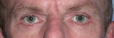 Eyelid Lift Gallery - Patient 4756968 - Image 2