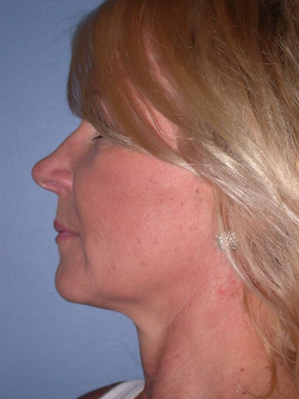 Facelift Gallery - Patient 4756967 - Image 5