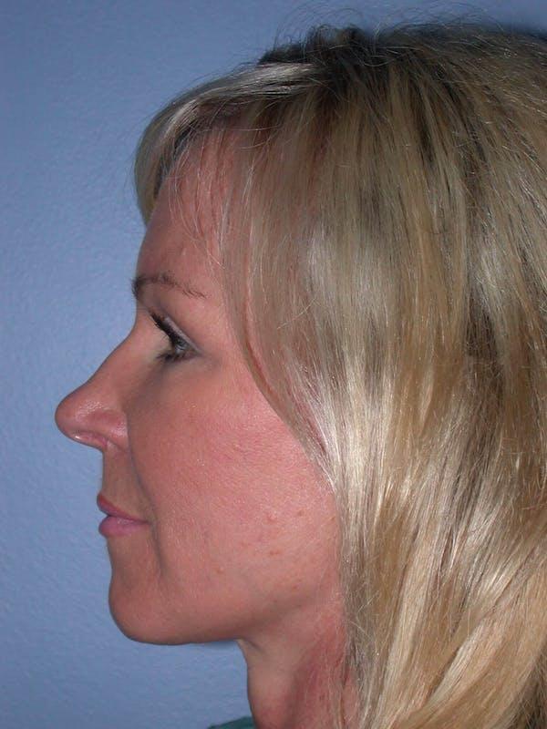 Facelift Gallery - Patient 4756967 - Image 6