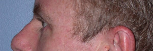Eyelid Lift Gallery - Patient 4756968 - Image 4