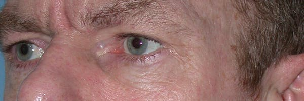 Eyelid Lift Gallery - Patient 4756968 - Image 7