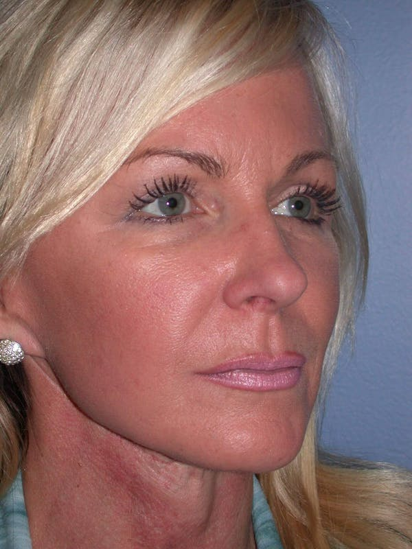 Facelift Gallery - Patient 4756967 - Image 8