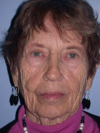 Facelift Gallery - Patient 4756977 - Image 1