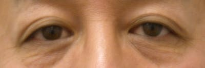 Eyelid Lift Gallery - Patient 4756971 - Image 1