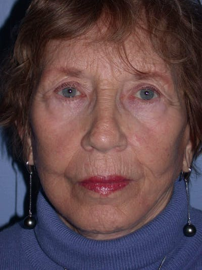 Facelift Gallery - Patient 4756977 - Image 2