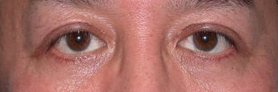 Eyelid Lift Gallery - Patient 4756971 - Image 2