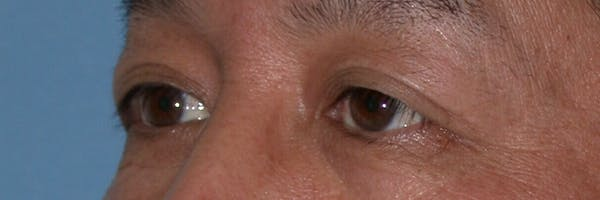 Eyelid Lift Gallery - Patient 4756971 - Image 3
