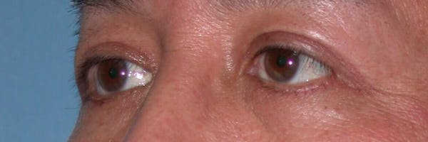Eyelid Lift Gallery - Patient 4756971 - Image 4