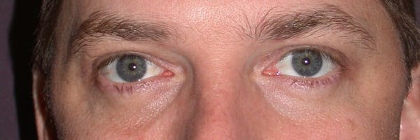 Eyelid Lift Gallery - Patient 4756973 - Image 2