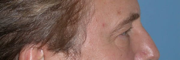 Eyelid Lift Gallery - Patient 4756984 - Image 3