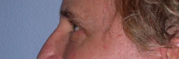 Eyelid Lift Gallery - Patient 4756984 - Image 6