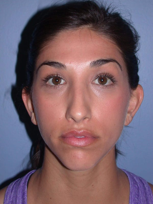 Before & After Otoplasty San Francisco