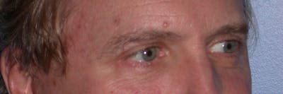 Eyelid Lift Gallery - Patient 4756984 - Image 8