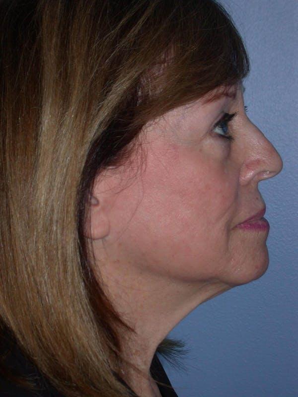 Facelift Gallery - Patient 4756989 - Image 5