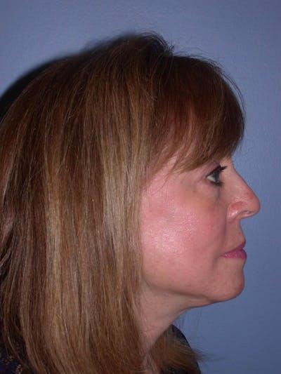 Facelift Gallery - Patient 4756989 - Image 6