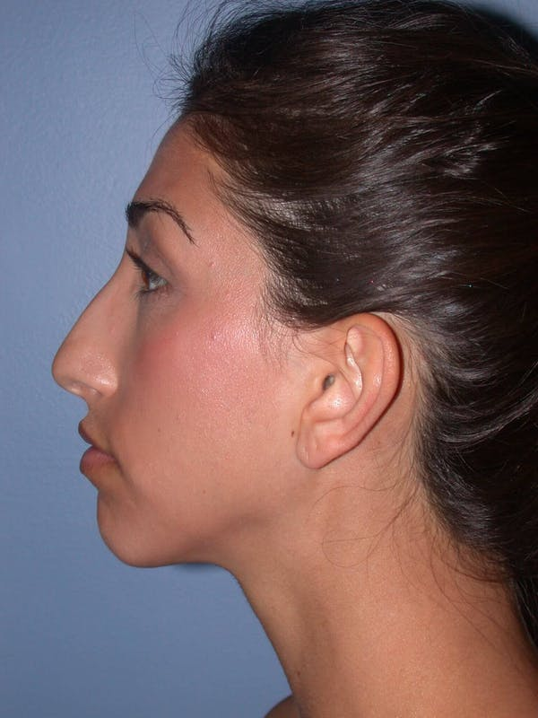 Ear Surgery Gallery - Patient 4756991 - Image 3