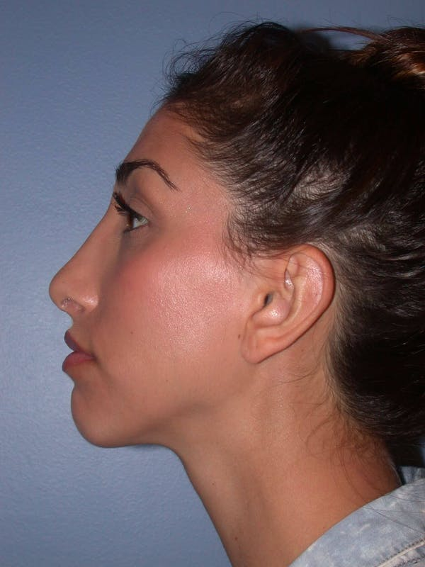 Ear Surgery Gallery - Patient 4756991 - Image 4