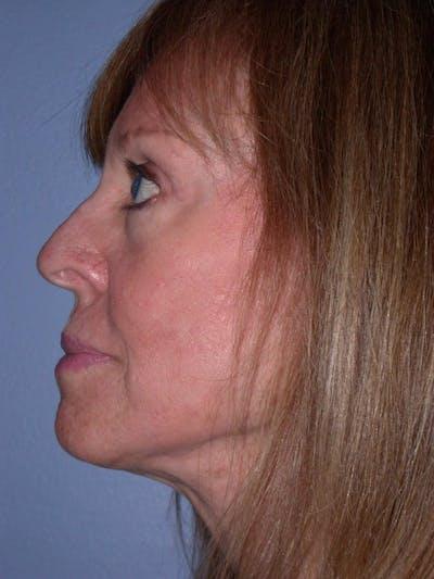 Facelift Gallery - Patient 4756989 - Image 8