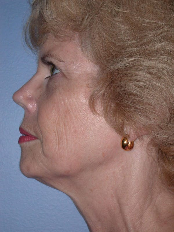 Facelift Gallery - Patient 4757000 - Image 3