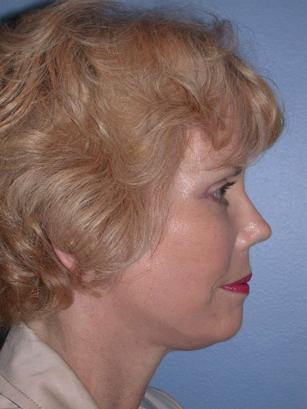 Facelift Gallery - Patient 4757000 - Image 6