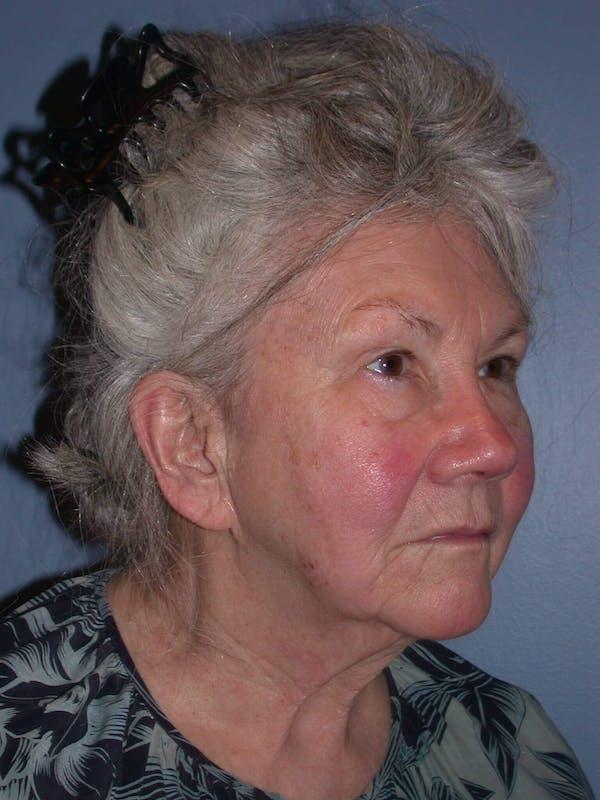 Facelift Gallery - Patient 4757002 - Image 3