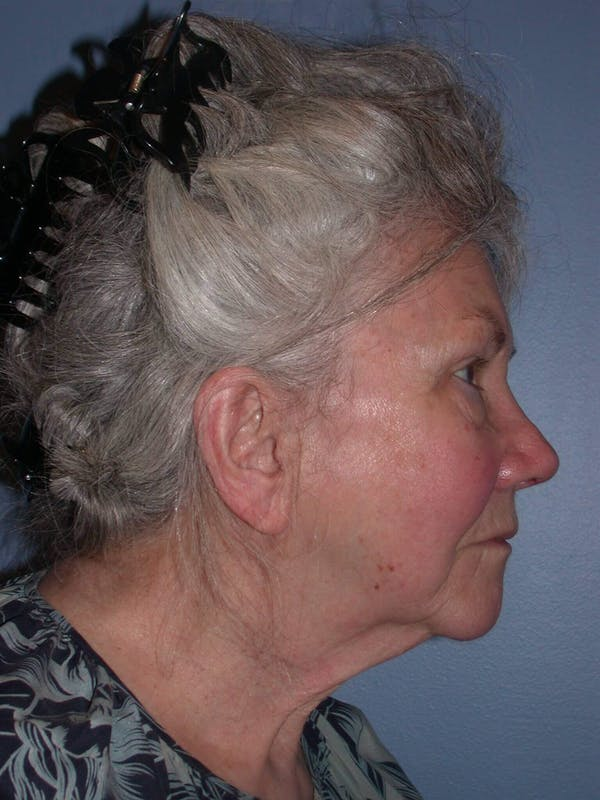 Facelift Gallery - Patient 4757002 - Image 5