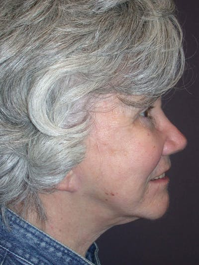 Facelift Gallery - Patient 4757002 - Image 6