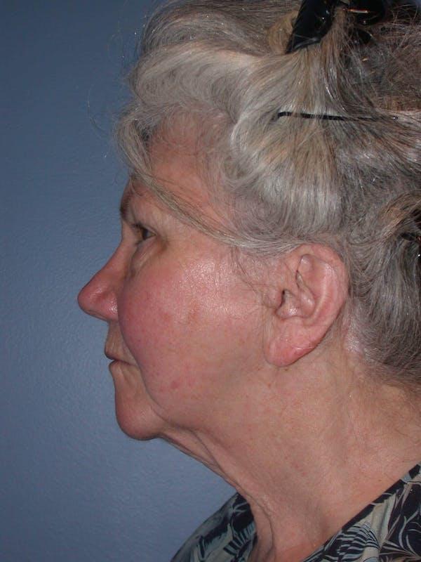 Facelift Gallery - Patient 4757002 - Image 7