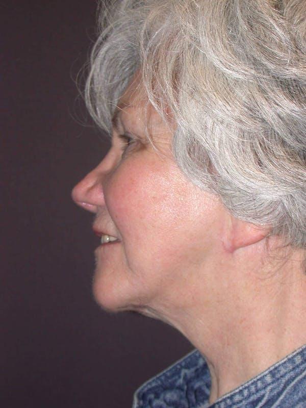 Facelift Gallery - Patient 4757002 - Image 8