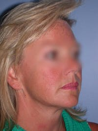 Facelift Gallery - Patient 4757005 - Image 1