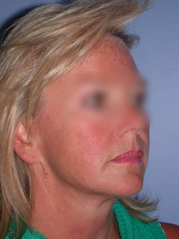 Facelift Gallery - Patient 4757005 - Image 1