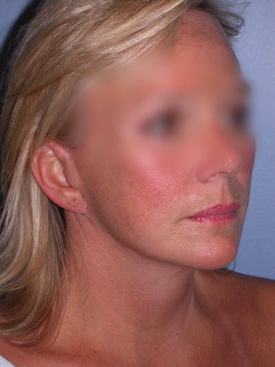 Facelift Gallery - Patient 4757005 - Image 2