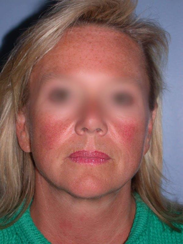 Facelift Gallery - Patient 4757005 - Image 3