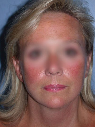 Facelift Gallery - Patient 4757005 - Image 4