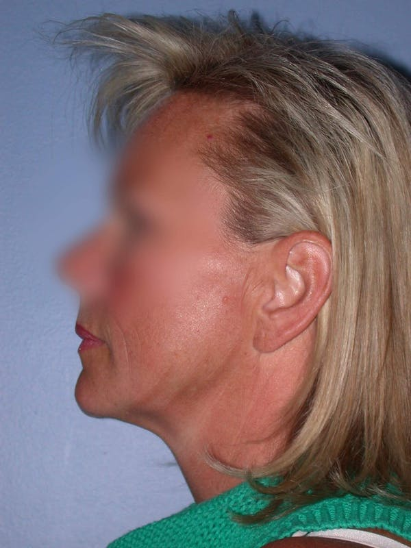 Facelift Gallery - Patient 4757005 - Image 5