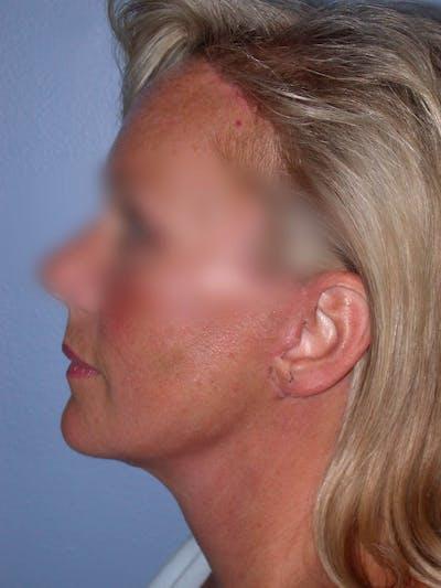 Facelift Gallery - Patient 4757005 - Image 6