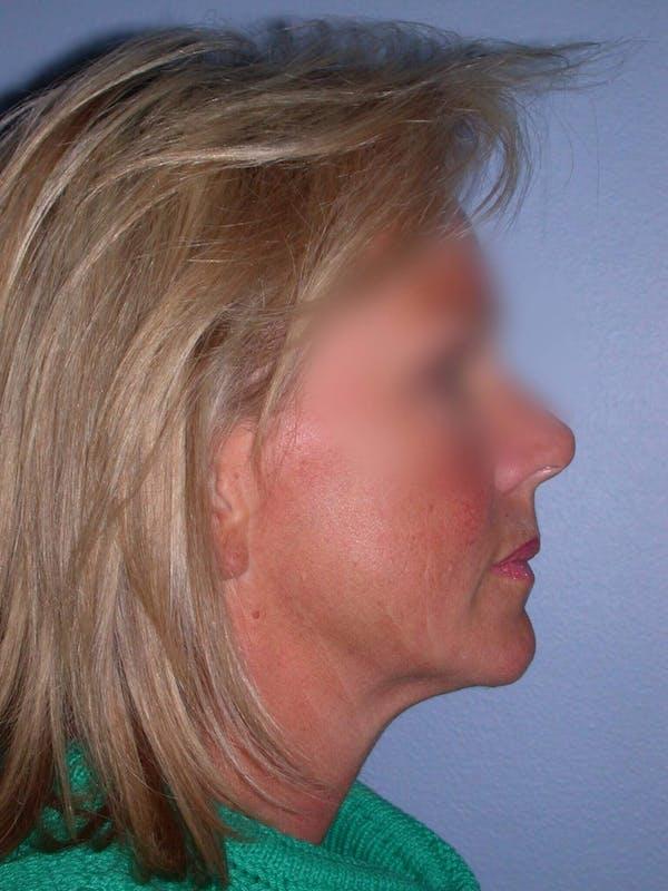 Facelift Gallery - Patient 4757005 - Image 7