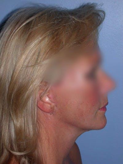 Facelift Gallery - Patient 4757005 - Image 8